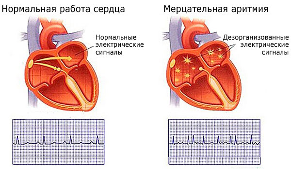 Аритмия сердца - характеристика и виды
