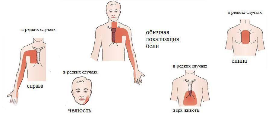 Признаки нетипичных приступов стенокардии