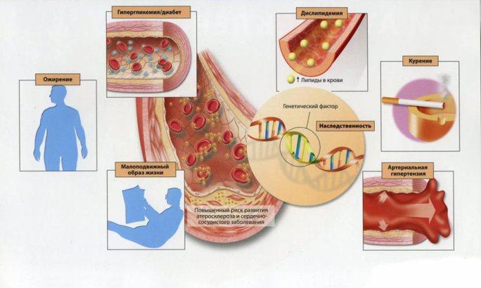 Развитие стенокардии