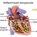 Характеристика и стадии болезни