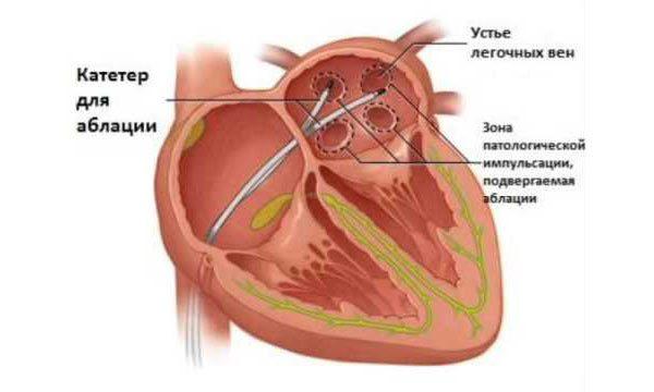 Абляция сердца - что это