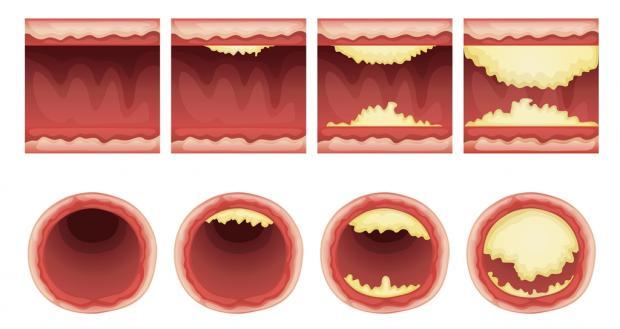 Анатомические типы поражения