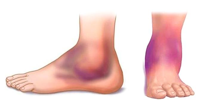Атеросклероз артерий голени и стопы