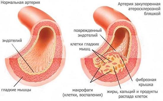 Атеросклероз мезентериальных артерий