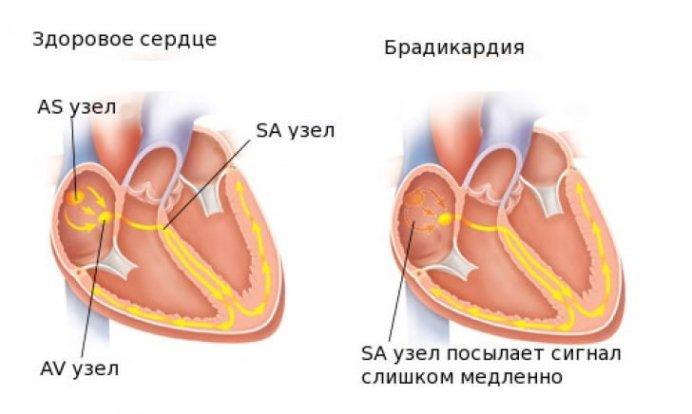 Брадикардия сердца - что это такое