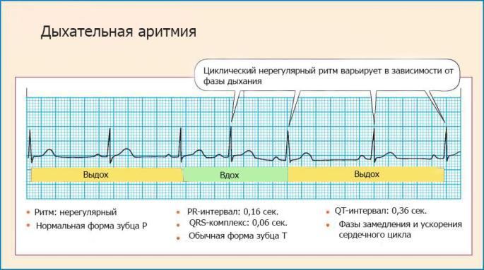 Виды дыхательной аритмии