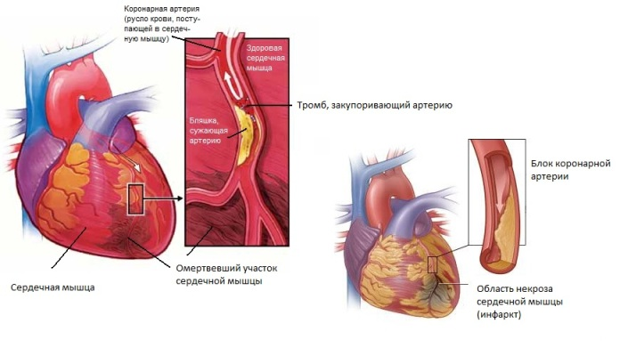 Возможные осложнения при инфаркте миокарда