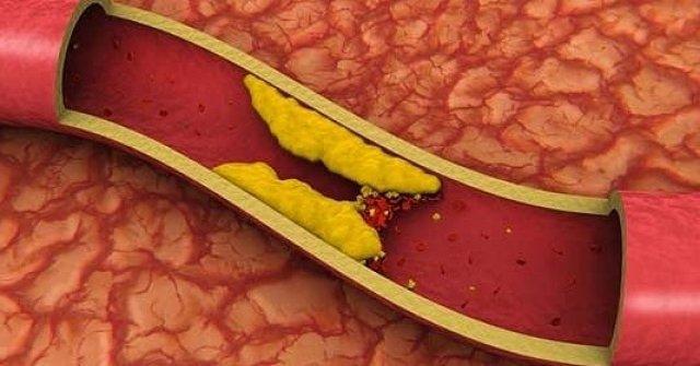 Восстановление кровообращения