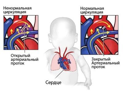 Врожденное заболевание сердца