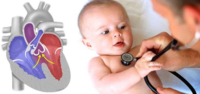 Диагностика тетрады Фалло у детей