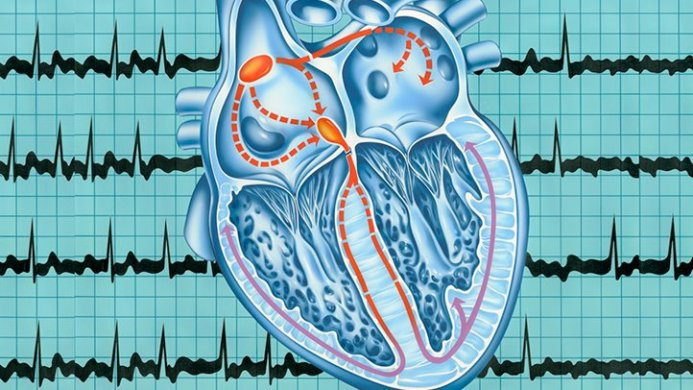 Дыхательная аритмия кто в группе риска