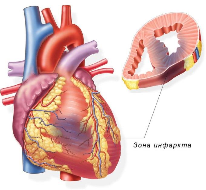 Инфаркт миокарда - что это
