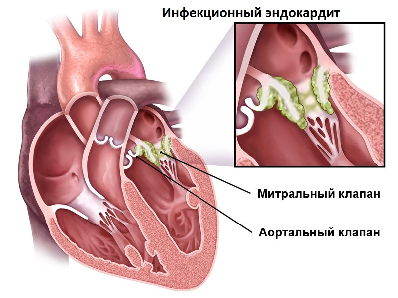 causes of bacterial endocarditis Infective endocarditis is infection of the endocardium, usually with bacteria (commonly, streptococci or staphylococci) or fungi it may cause fever, heart murmurs, petechiae, anemia, embolic phenomena, and endocardial vegetations.