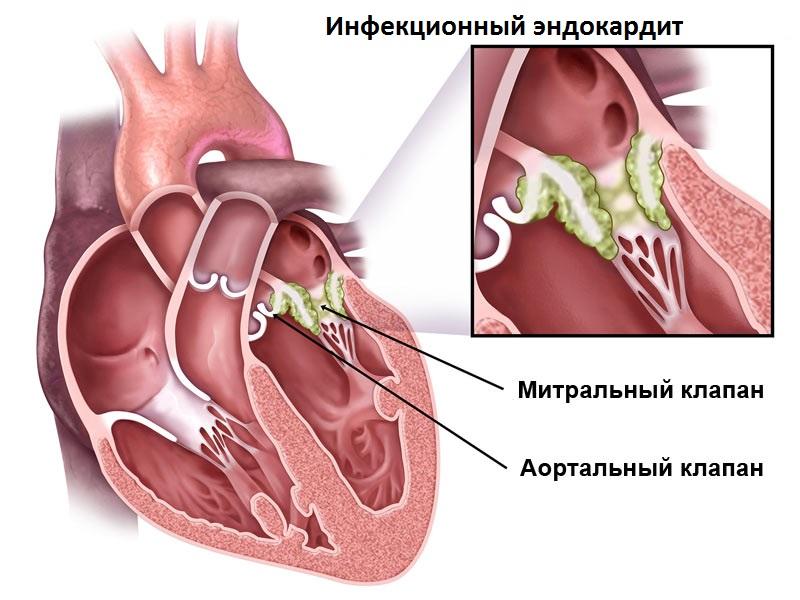 Инфекционный эндокардит - характеристика