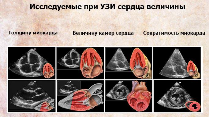 Исследуемые при УЗИ сердца величины