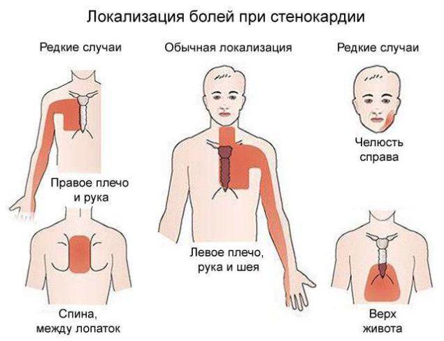 Как болит сердце при стенокардии?