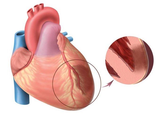 Как протекает инфаркт миокарда