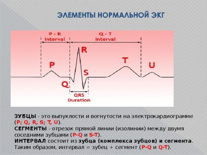 Компоненты ЭКГ