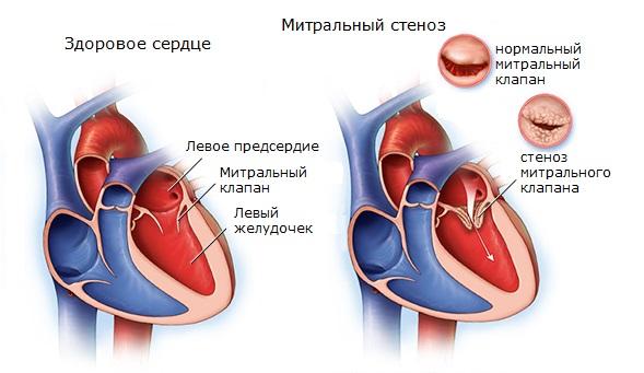 Нарушение работы левых отделов сердца