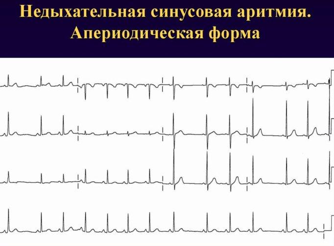 Недыхательная синусовая аритмия