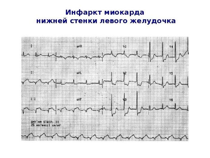 Нижний инфаркт и его характеристика