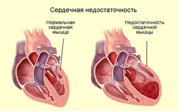 Общее описание сердечной недостаточности