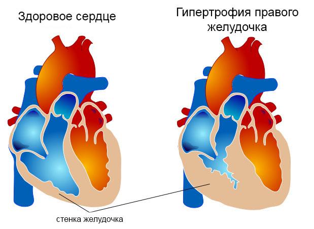 Описание гипертрофии сердца