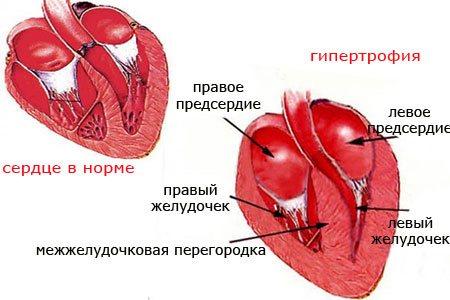 Гипертрофия левого предсердия - описание заболевания