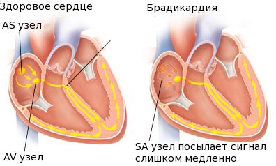 Осложнение дыхательной аритмии: брадикардия