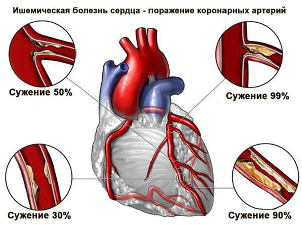 Осложнения ИБС. Кардиосклероз