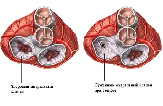 Осложнения митрального стеноза