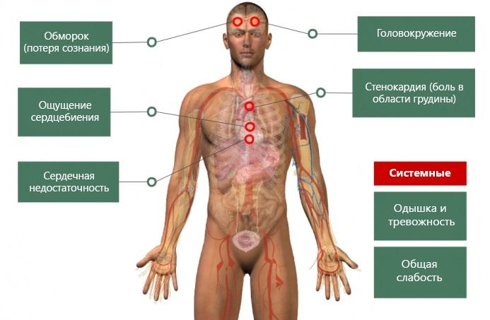 Основные симптомы1