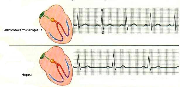 Патологическая и синусовая тахикардия сердца