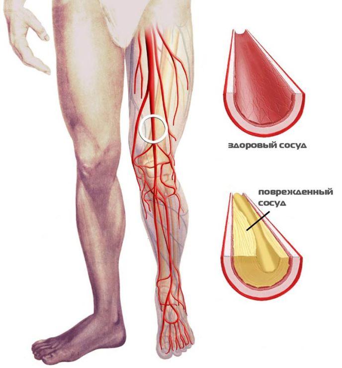 Критическая ишемия с болью в бедре