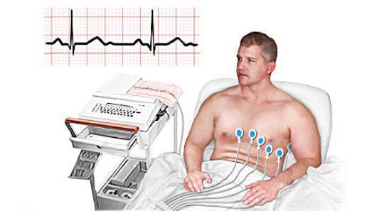 Принцип проведения электрокардиографии