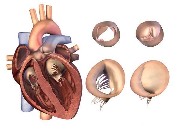 Приобретенные пороки сердца - характеристика