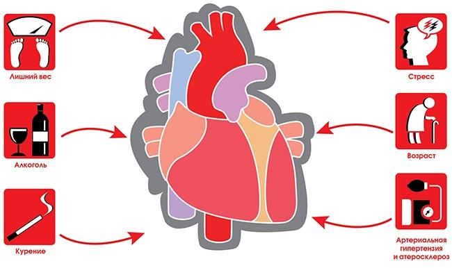Причины возникновения инфаркта