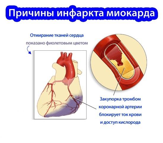 Причины инфаркта у женщин