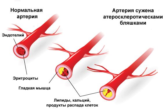 Причины и стадии развития атеросклероза