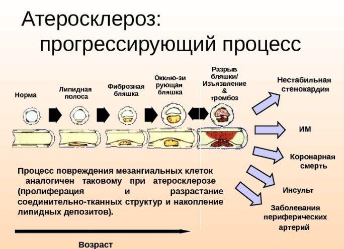 Прогрессирующий атеросклероз
