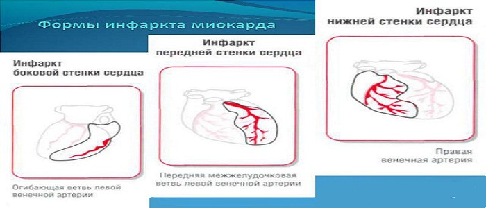 Разновидность инфаркта миокарда
