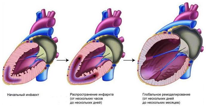 Рубец, образующийся после инфаркта миокарда