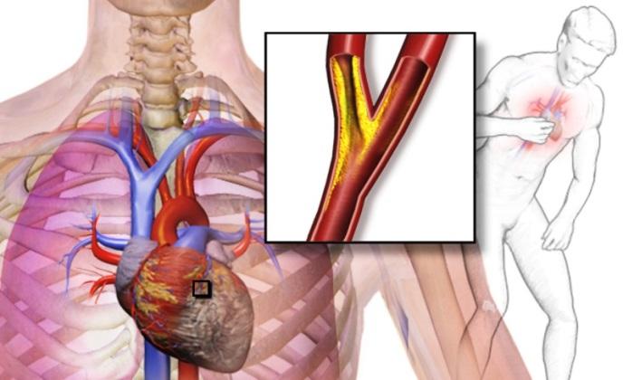 Сердечная боль при инфаркте миокарда