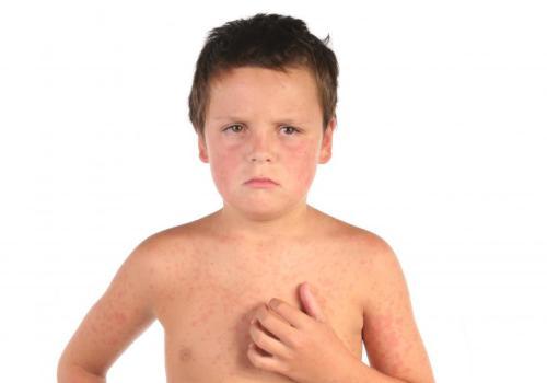 Сердечные боли у детей