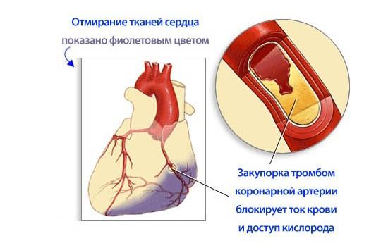 Симптомы инфаркта миокарды1