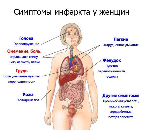 Симптомы и признаки инфаркта миокарда у женщин