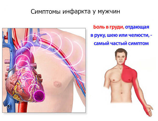 Симптомы и признаки инфаркта миокарда у мужчин