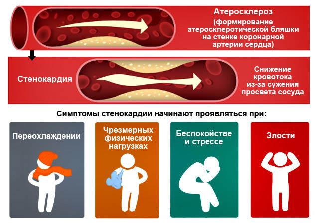 Симптомы стенокардии напряжения