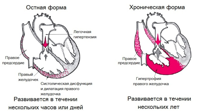 Симптомы хронической формы течения болезни