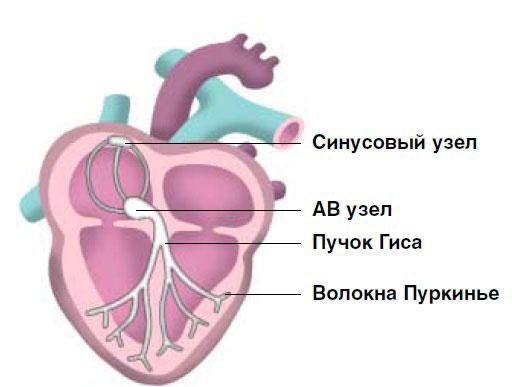 Синдром синусового узла